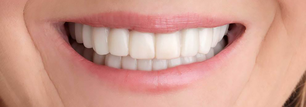 Snap-On Smile, Cosmetic Dentistry at Polin Dental